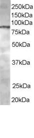 Western blot - CENTB1 antibody (ab85945)