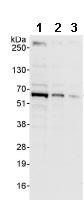 Western blot - ARFGAP3 antibody (ab85971)