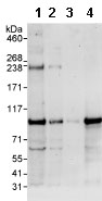 Western blot - B Raf antibody (ab85972)
