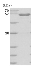 SDS-PAGE - IGLK protein (His tag) (ab85977)