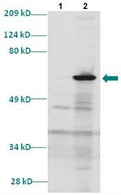 Western blot - Dlx5 antibody (ab85997)