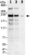 Western blot - CAMSAP1 antibody (ab86001)