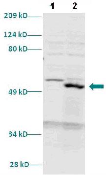 Western blot - HOXA11 antibody (ab86011)