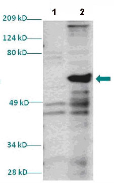 Western blot - Homeo box C10 antibody (ab86012)