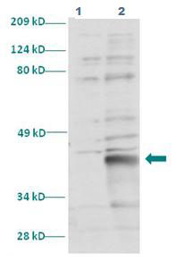 Western blot - LHX3 antibody (ab86019)
