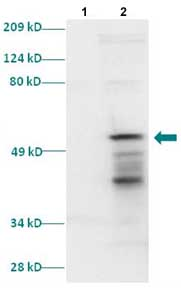 Western blot - TTF1 antibody (ab86023)