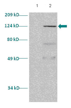Western blot - STAT5a antibody (ab86030)