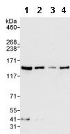 Western blot - RENT1/hUPF1 antibody (ab86057)