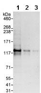 Western blot - EML4 antibody (ab86062)