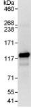 Immunoprecipitation - EML4 antibody (ab86062)