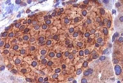 Immunohistochemistry (Formalin/PFA-fixed paraffin-embedded sections) - Anti-IQGAP1 antibody (ab86064)