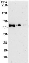 Western blot - PDLIM7 antibody (ab86069)