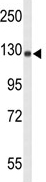 Western blot - NFkB p100 / p52 antibody - N-terminal (ab86090)