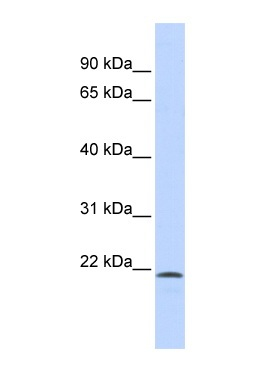 Western blot - SCML1 antibody (ab86101)