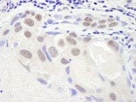 Immunohistochemistry (Formalin/PFA-fixed paraffin-embedded sections) - SMC6L1 antibody (ab86103)