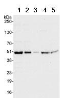 Western blot - EIF2S2 antibody (ab86105)