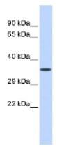 Western blot - ZNF124 antibody (ab86122)