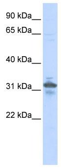 Western blot - RPIA antibody (ab86123)
