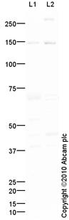 Western blot - HDAC9 antibody (ab86140)