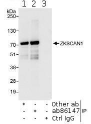 Immunoprecipitation - ZKSCAN1 antibody (ab86142)
