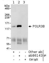 Immunoprecipitation - POLR3B antibody (ab86143)