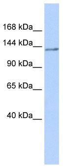 Western blot - NFRKB antibody (ab86154)