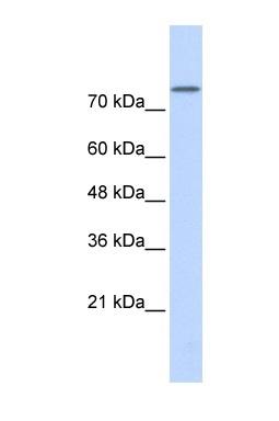 Western blot - Phospholipase D2 antibody (ab86163)