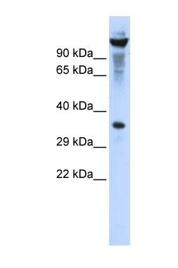 Western blot - Ribonuclease T2 antibody (ab86165)