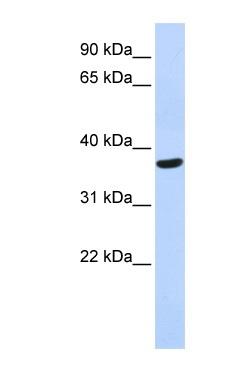 Western blot - SPDYA antibody (ab86168)