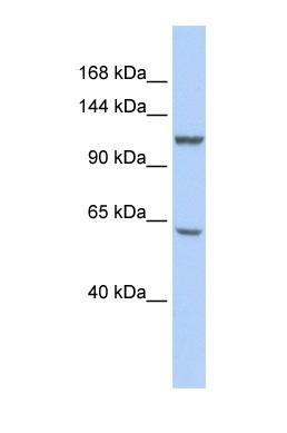 Western blot - MCM8 antibody (ab86169)
