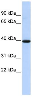 Western blot - NMBR antibody (ab86171)