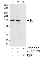 Immunoprecipitation - Bcr antibody (ab86173)