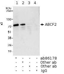Immunoprecipitation - ABCF2 antibody (ab86178)