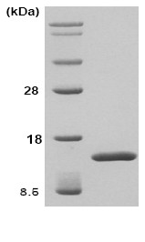 SDS-PAGE - TGFBI protein (ab86218)