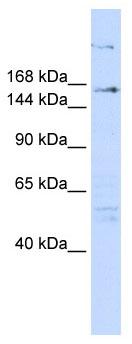 Western blot - RERE antibody (ab86231)