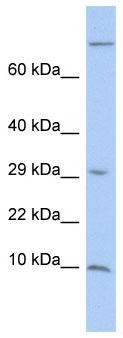 Western blot - MGP antibody (ab86233)