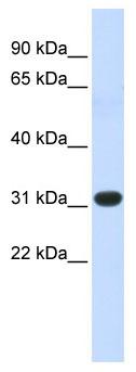 Western blot - HOXC8 antibody (ab86236)