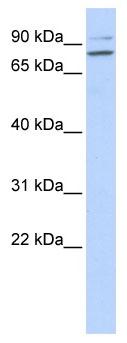 Western blot - PLCD1 antibody (ab86263)