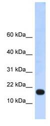 Western blot - ZNF493 antibody (ab86269)