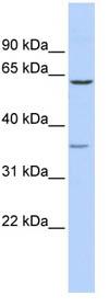 Western blot - GBAS antibody (ab86270)
