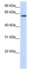 Western blot - FBXO24 antibody (ab86288)