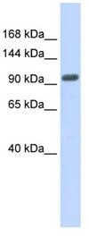 Western blot - ZNF512B antibody (ab86289)