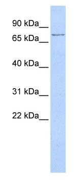 Western blot - TMEM57 antibody (ab86308)