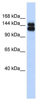 Western blot - TIF1 gamma antibody (ab86314)