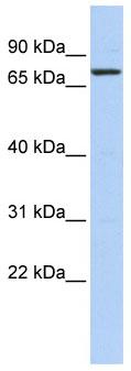 Western blot - KLHL5 antibody (ab86315)