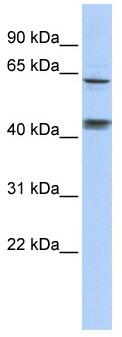 Western blot - KLHL8 antibody (ab86322)