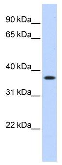 Western blot - MTHFD2 antibody (ab86324)