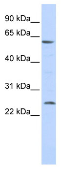 Western blot - VMAT1 antibody (ab86325)
