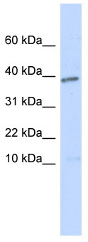 Western blot - Lefty antibody (ab86326)