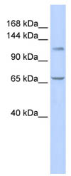 Western blot - ZBT10 antibody (ab86333)